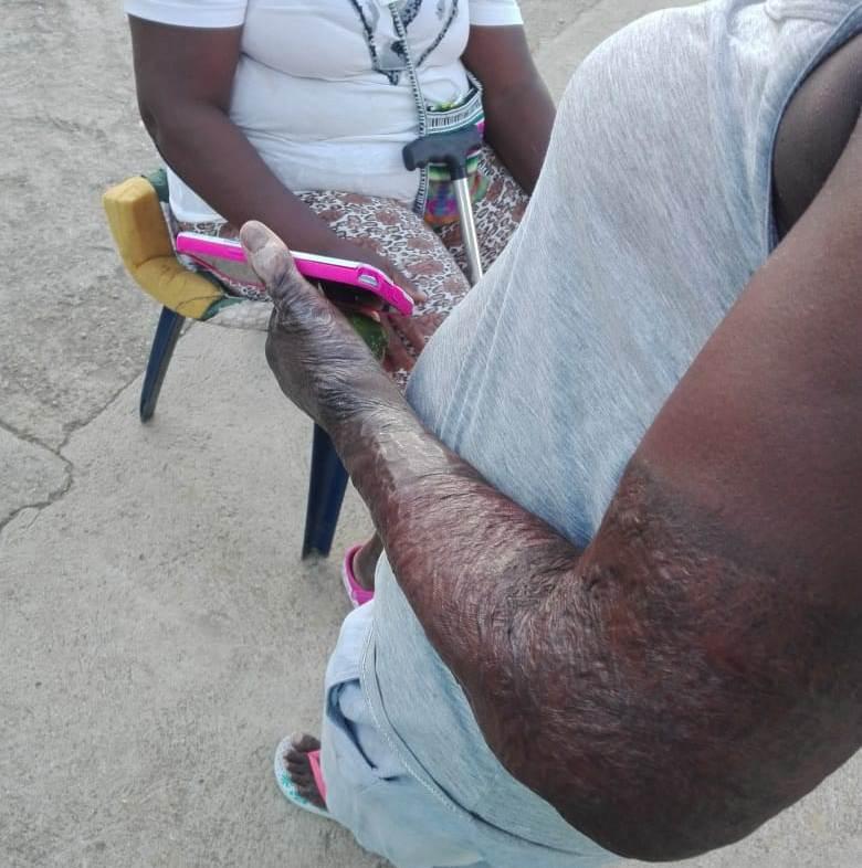 Sobreviviente con sus cicatrices tras 20 años del incendio de Machuca.