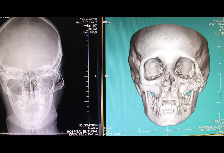 Reconstrucción de un rostro tras ser impactado por una bala