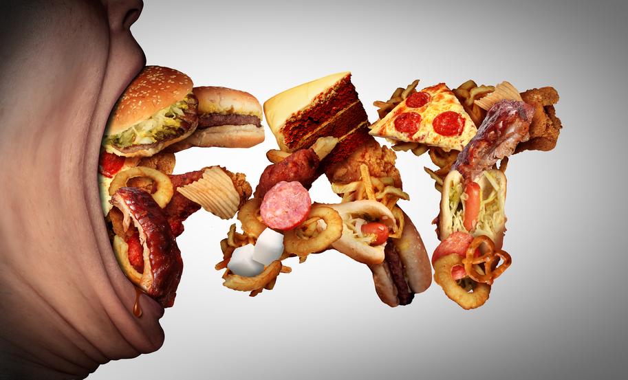 Obesidad - Mala alimentación