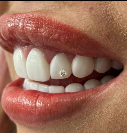 Yina Carlderón estrena diamante en su diseño de sonrisa