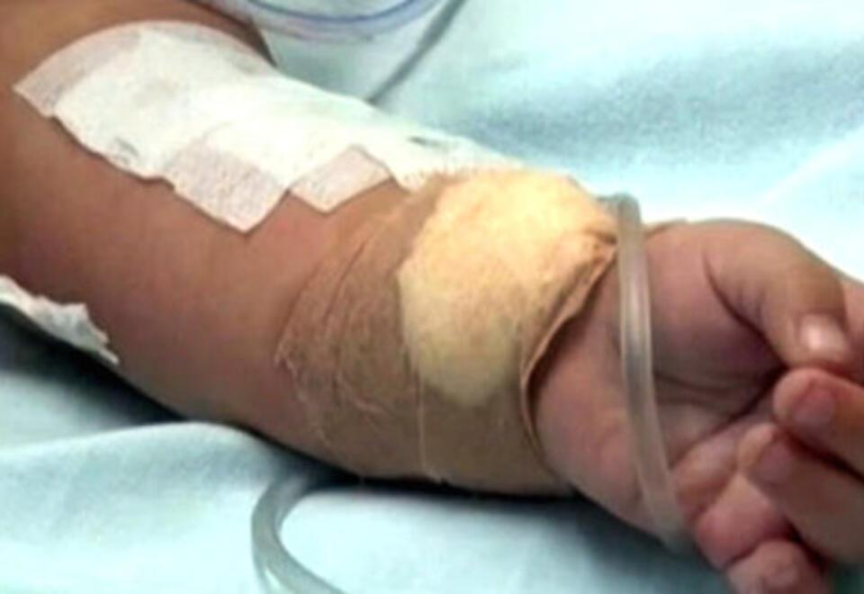El niño sufrió quemaduras en el 75 por ciento de su cuerpo.