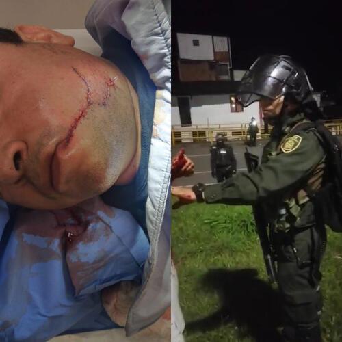 Por supuesto ataque a taxista en Pereira, Policía abre investigación a agente del Esmad