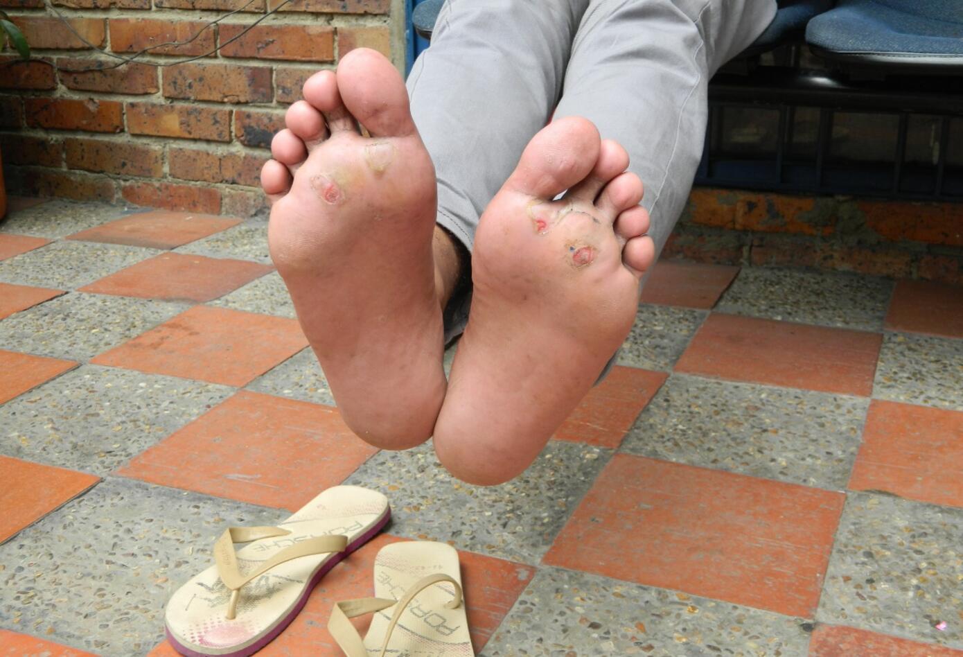 Los pies de los venezolanos caminantes