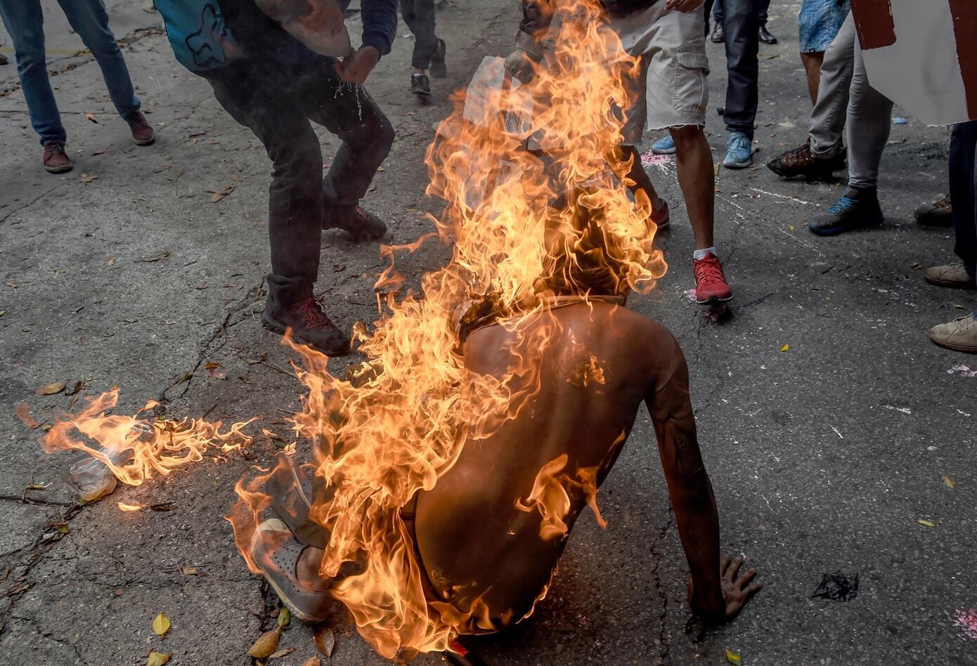 Manifestantes quemados en Venezuela