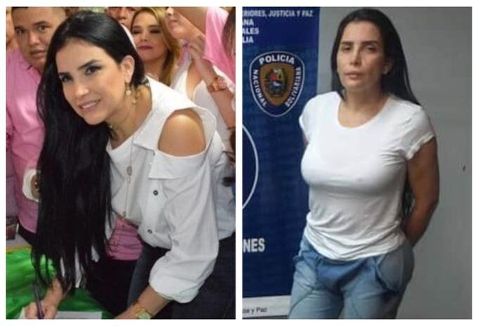 Aida Merlano antes y despúes